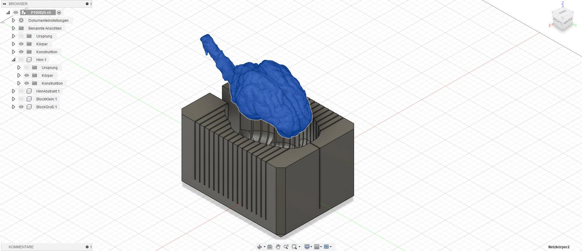 Gehirnschneideschablone in CAD Software