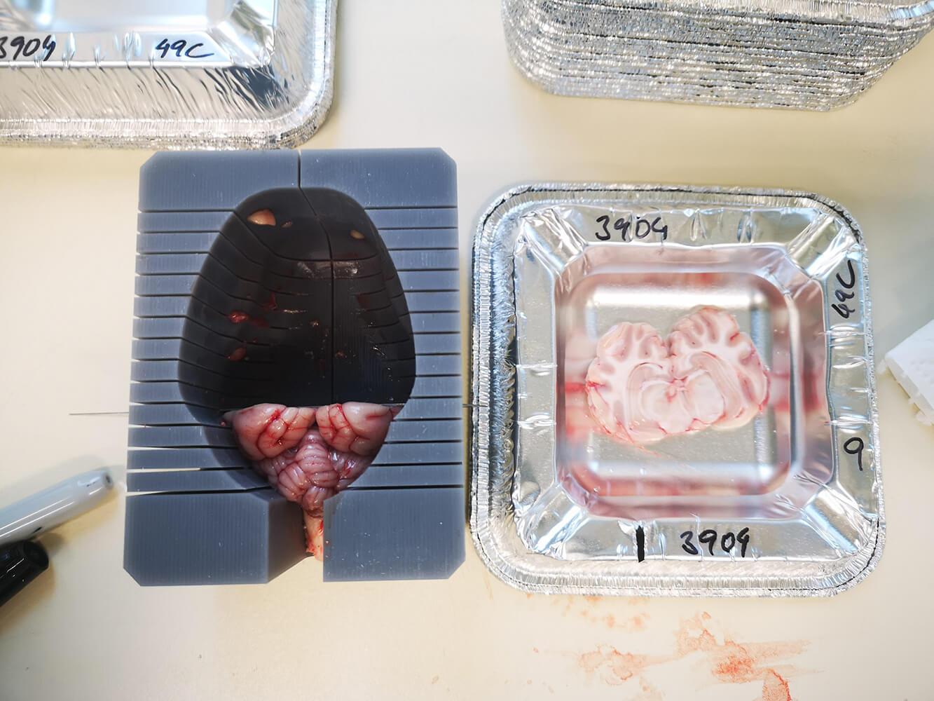 Gehirnschneideschablone in Anwendung